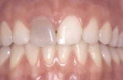 Wurzelbehandlung sich grau zahn verfärbt nach IE